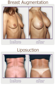 breast-enhancement